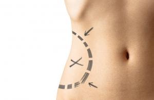 Tratamiento reductor abdomen 2 en 1